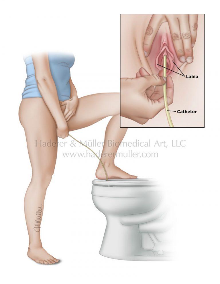 Self catheterization female PI_HadererMuller_UpToDate